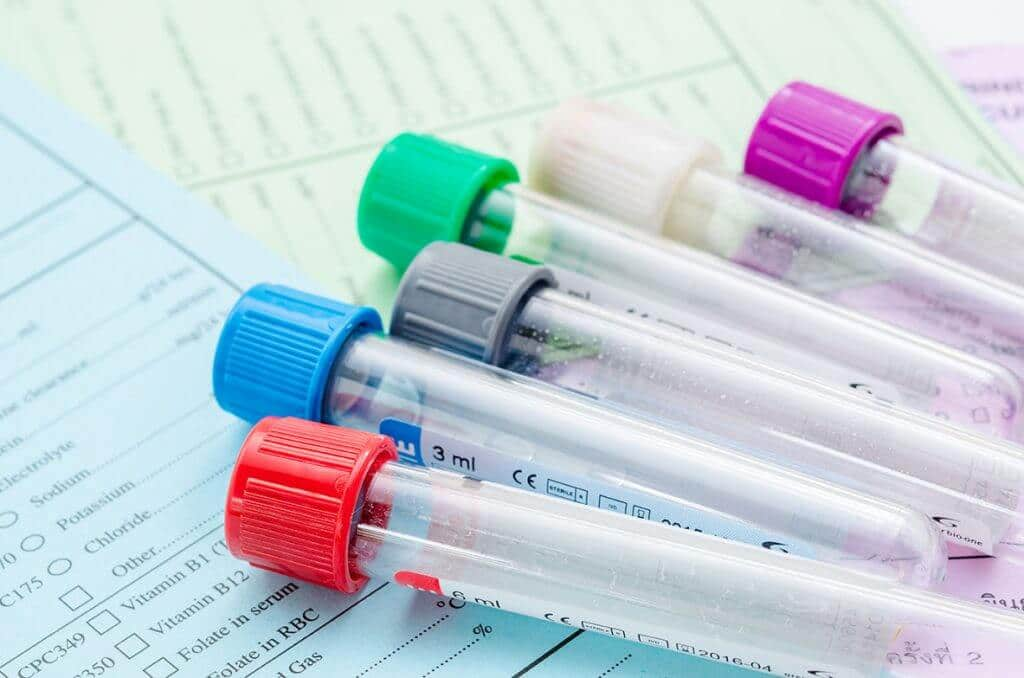 When to do hormonal tests